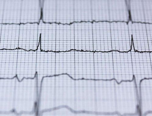 Herzrhythmusstörung – vertraue Deinem Arzt nicht pauschal